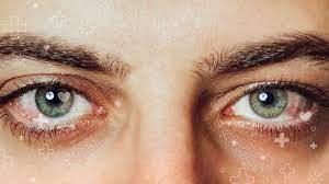 Você deve fumar maconha para tratar seu glaucoma?